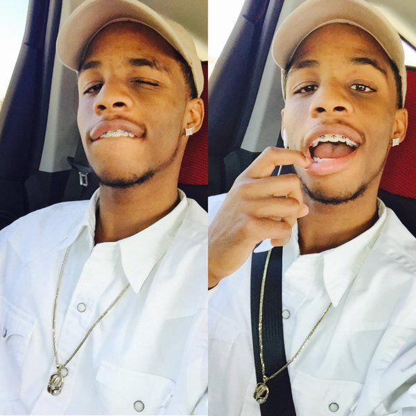 Trey Traylor braces teeth